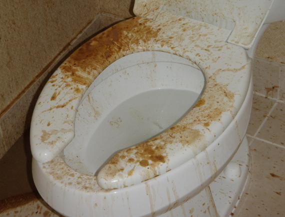 Feces contamination of national chain hotel suite bathroom.